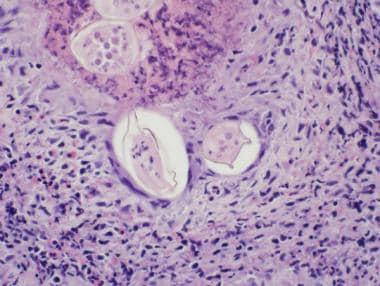 Schistosoma-associated cystitis. Schistosoma eggs