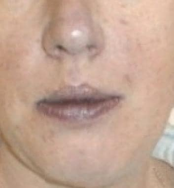 Cyanotic lips in a woman with hypoxia.
