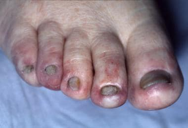 Dorsal surface of the toes of the right foot of a