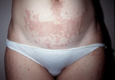 Papules within prominent striae distensae. Courtes