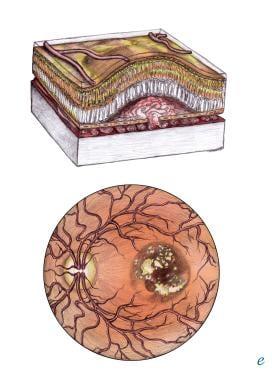 Age-related macular degeneration (AMD), exudative.