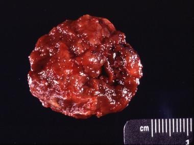 Gross specimen of the same giant cell tumor in the