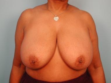 Breast reduction, superomedial pedicle. Preoperati