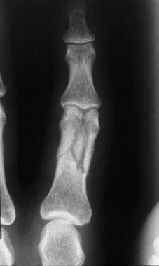Phalangeal fractures. Complex unstable fracture of