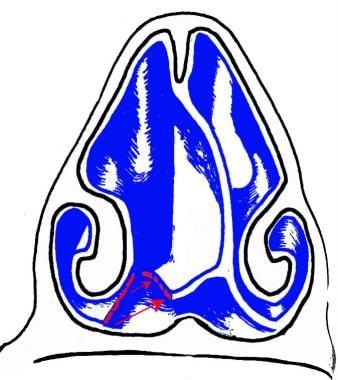 Medialization of nasal floor flap.