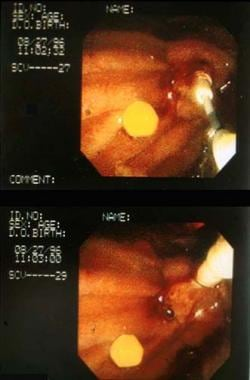 Photograph illustrating the role of endoscopic ret