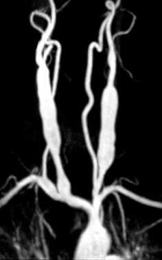 Magnetic resonance angiogram (MRA) in the same pat