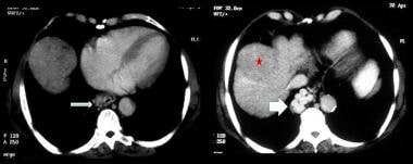 Axial contrast-enhanced CT scans in the portal ven