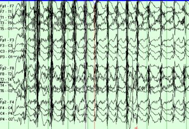 Example of EEG chewing artifact.