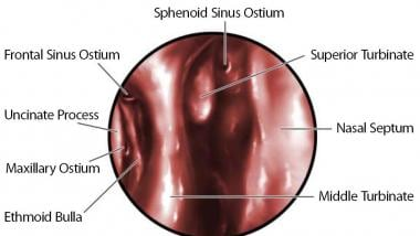 Endoscopic view of sinus ostia location in the lat