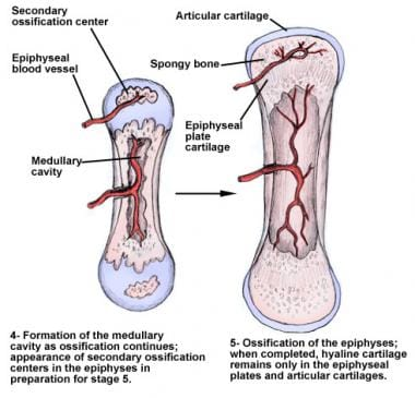 Endochondral ossification of long bones through ca