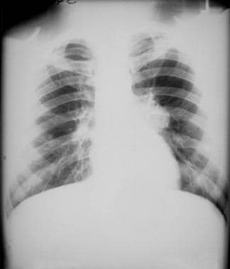 Chest radiograph from a patient with blastomycosis