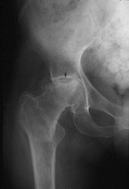 An anteroposterior pelvic radiograph of a patient