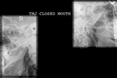 Closed-mouth lateral radiographic view of both con