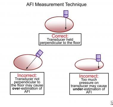 Amniotic fluid index (AFI) measurement technique.