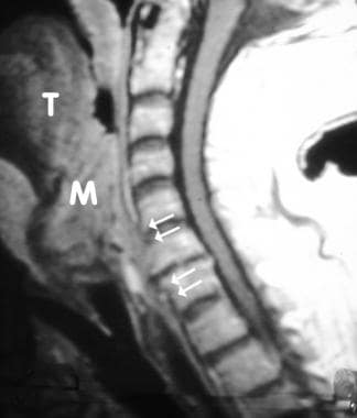 Sagittal T1-weighted image of a patient with laryn