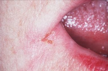 Angular stomatitis; a common form of oral candidia
