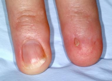 Micronychia of the left index finger and malalignm