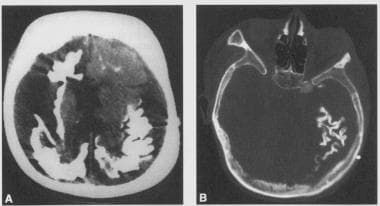 Cranial CT scan showing calcifications.