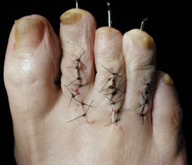 Multiple repaired claw toes; K-wires added for sta