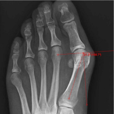 Distal metatarsal articular angle (normal < 10°