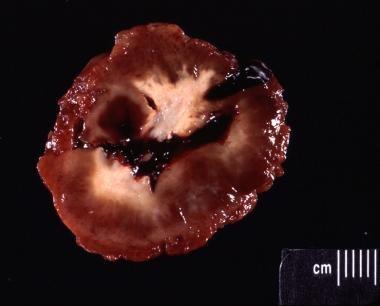 Bisected gross specimen of the giant cell tumor in