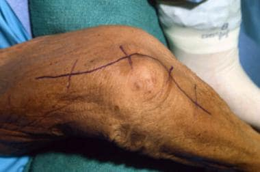 Incision is made along proximal 5 cm of medial uln