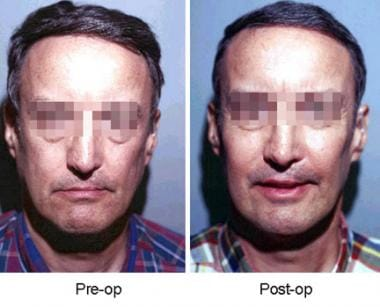 Frontal view of patient before and after insertion