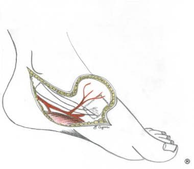 Medial plantar flap, instep flap (O'Brien and Shan