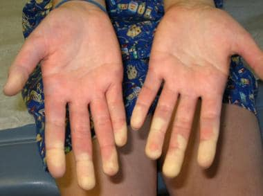 Raynaud phenomenon showing demarcation of color di