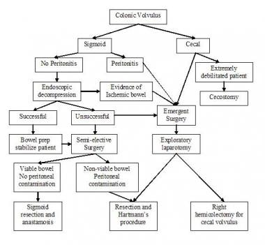 Algorithm for treatment of patients with sigmoid a