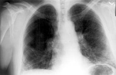Chest radiograph of a patient with chronic hyperse
