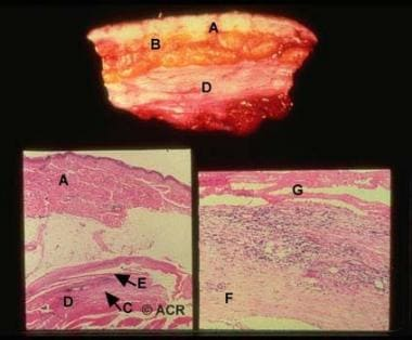 Eosinophilic fasciitis. Top: In this gross specime