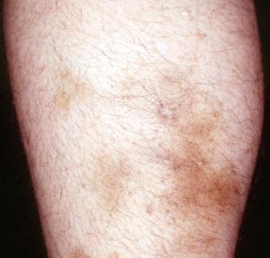 Nonspecific, firm, tender subcutaneous nodules wit