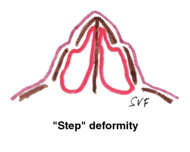 "Diagrammatic representation of the ""step"" deformit"