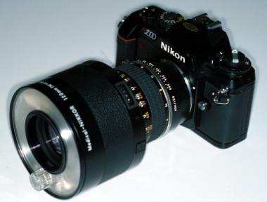 This traditional medical Nikon lens has superb opt