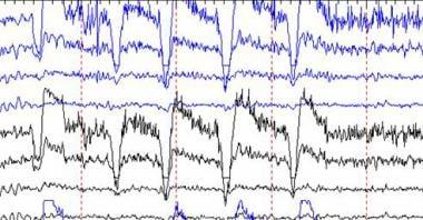 EEG artifact of eye blinking.