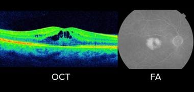 Optical coherence tomography (OCT) and fluorescein