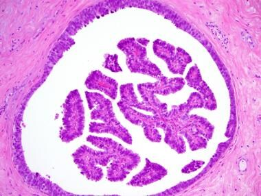 Small, peripheral intraductal papilloma (IDP [S/P