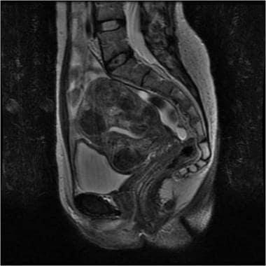 Sagittal magnetic resonance image (MRI) revealing