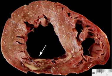 Acute myocardial infarct. At 3 days, there is a zo