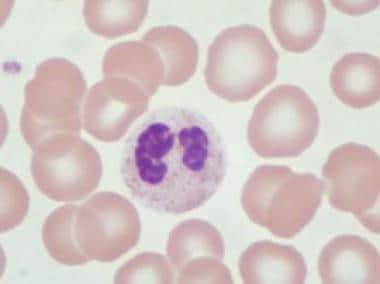 Pseudo–Pelger-Huet cell: granulocyte with bilobed