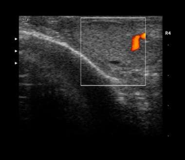 Sonogram depicting a combination of an intratestic