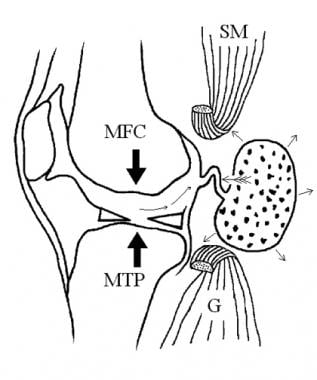 Valvular mechanism of Baker cyst. Effusion and fib