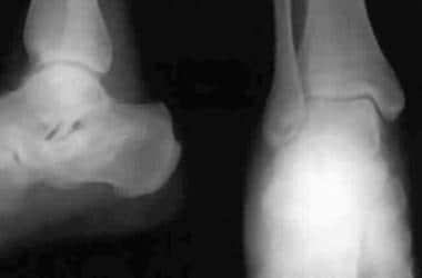 Calcaneus, fractures. Essex-Lopresti depression-ty