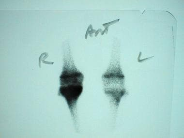 Bone scan in a 16-year-old boy complaining of pain