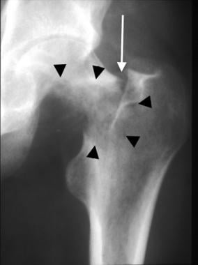 Anteroposterior radiograph of the hip in a dialysi