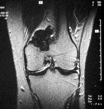 Pigmented villonodular synovitis of the knee. Coro