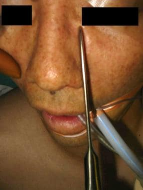 Nasal bone reduction.