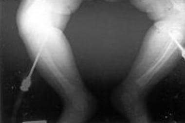 Bilateral misplaced intraosseous needles.